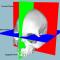 Modelos cranianos 3D: nova abordagem craniométrica